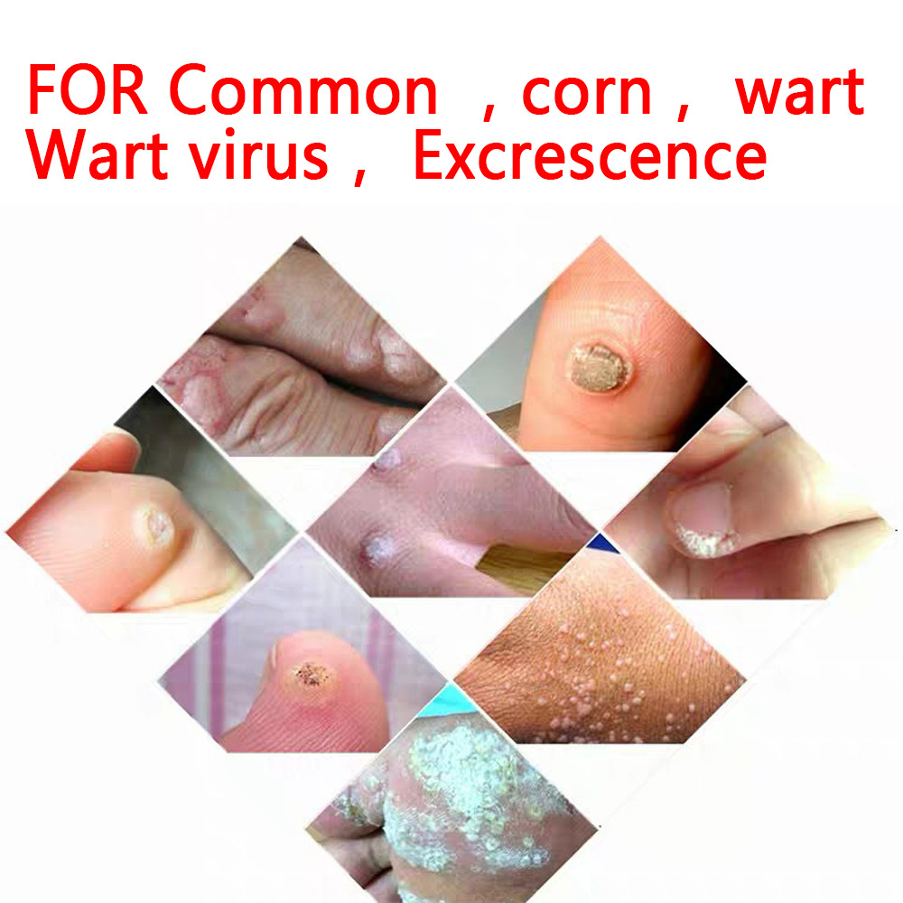 3ml Skin Tags Remover Pen Skin Tags Genital Wart Remover Foot Corn Removal Pen Beauty Tool