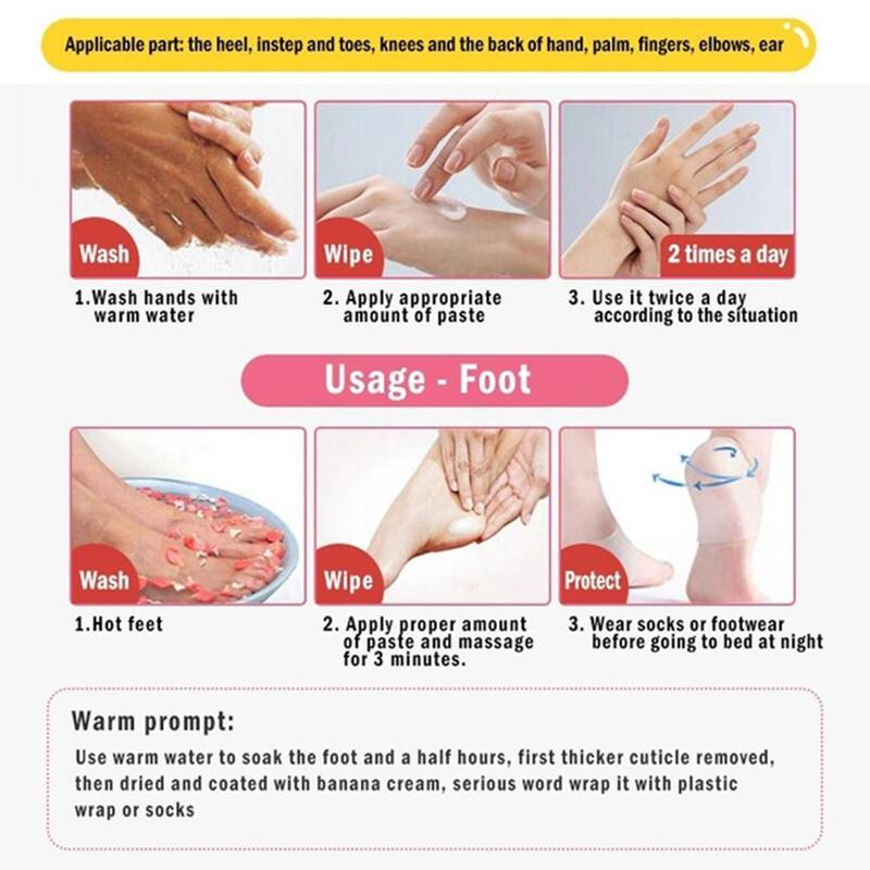 Antifungal Eczema Callus Remover For Feet