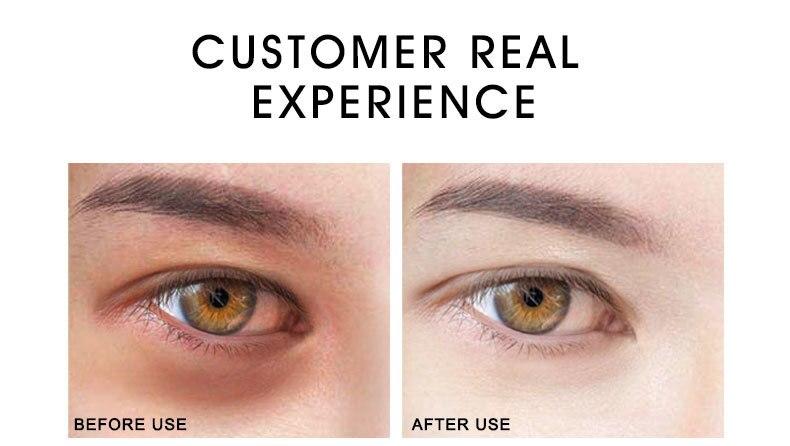 gold-eye-cream_09