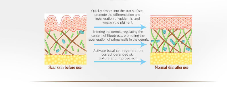 scar-ance-removal-gel_07