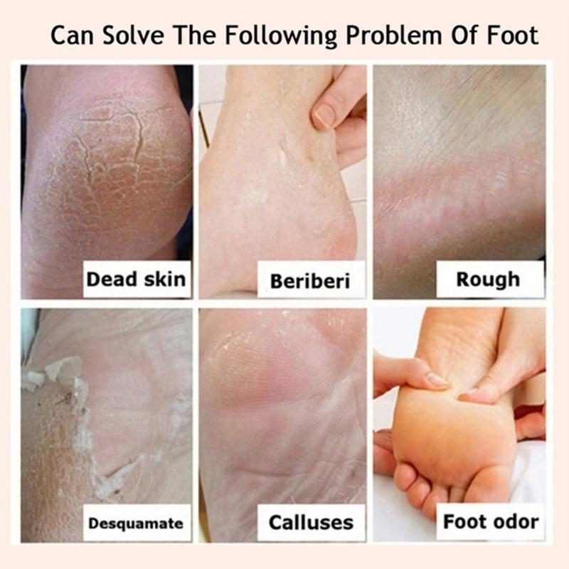 This foot cream is recommended by Podiatrists