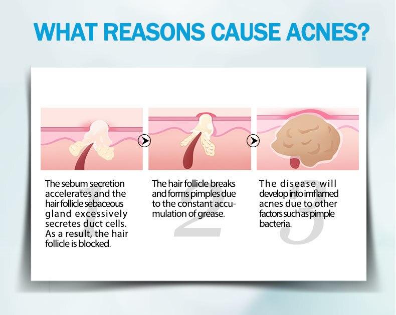 anti-acne_06