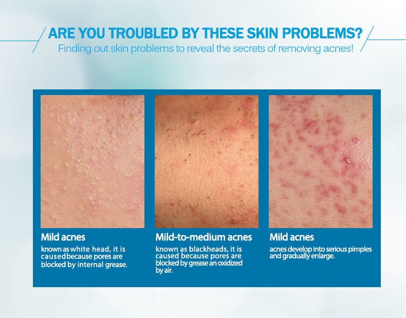 anti-acne_05