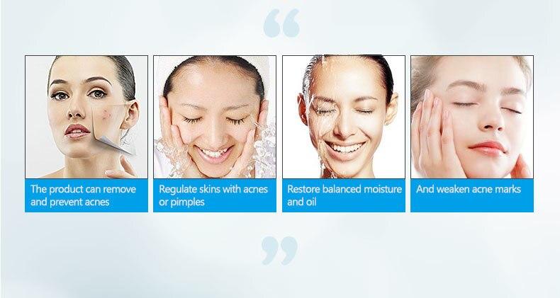 anti-acne_10