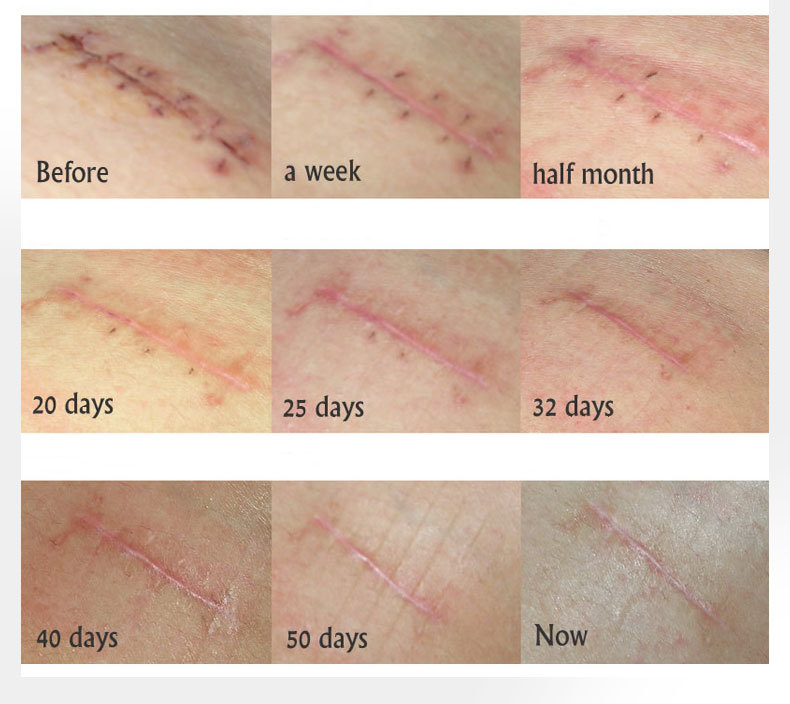 scar-ance-removal-gel_10
