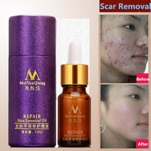 Scar Repair Skin Essential Oil Lavender Essence Skin Care Natural Pure Remove Ance Burn Strentch Marks Scar Removal 10ML(China)