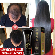 Hair Growth Shampoos Products Hair Care Fast Powerful Regrowth Essence Liquid Treatment Preventing Hair Loss For Men And Women(China)