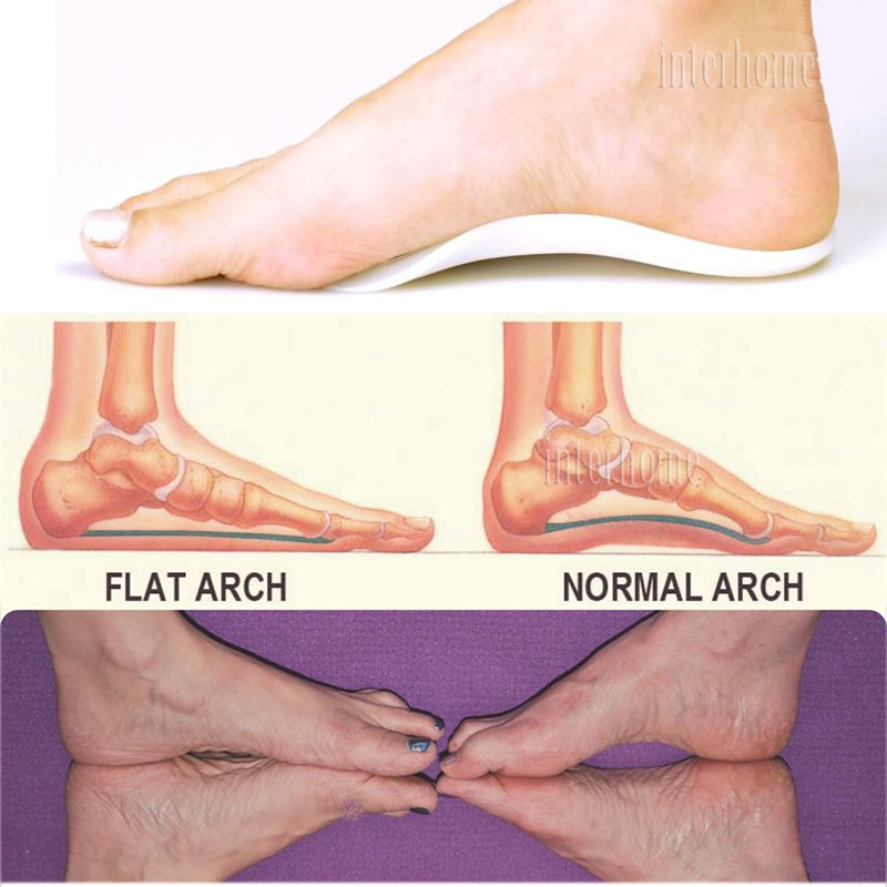 Arch-Insole-HJ-056(8)
