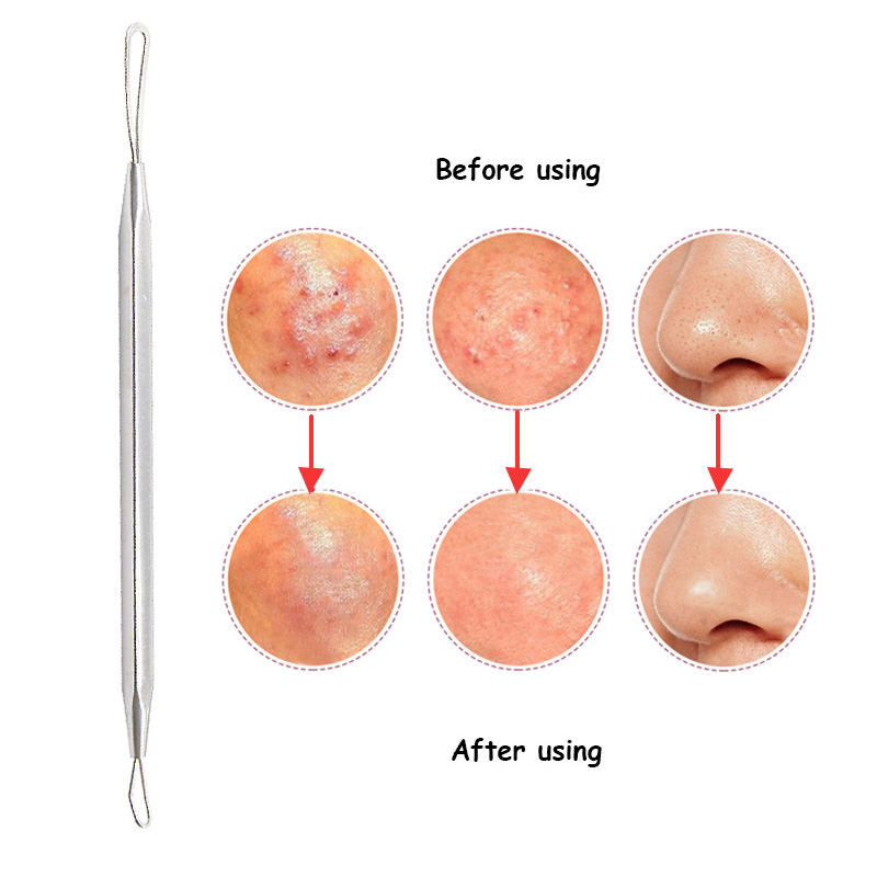 1pc Face Exfoliator Comedone Pimple Remover Tool Blackhead And Pimple Remover Acne Extractor Needle Skin Cleaner Face Care Tools 13