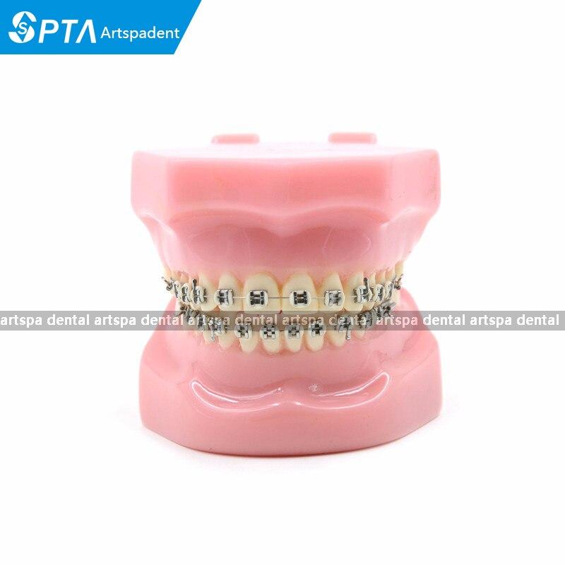Dental Orthodontics Typodont Teeth Model Metal Brace bracket Typodont with Arch Wire<br>