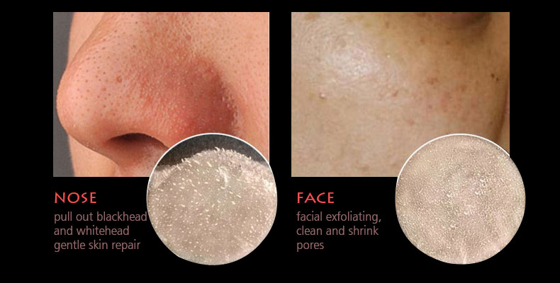 rose-blackhead-removal_08