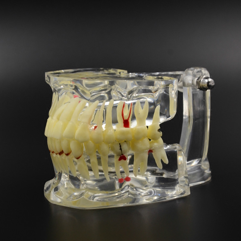 Good Quality Dental Implant Disease Tooth Pathological Extrusion Missing With impacted tooth dental pathological teeth implant<br>