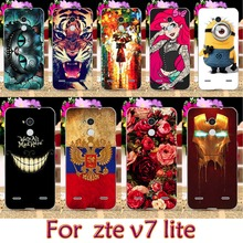 AKABEILA Soft TPU Plastic Phone Case For ZTE Blade V7 Lite Blade A2 5.0 inch For Zte A2 Case Phone Cover housing phone Skin
