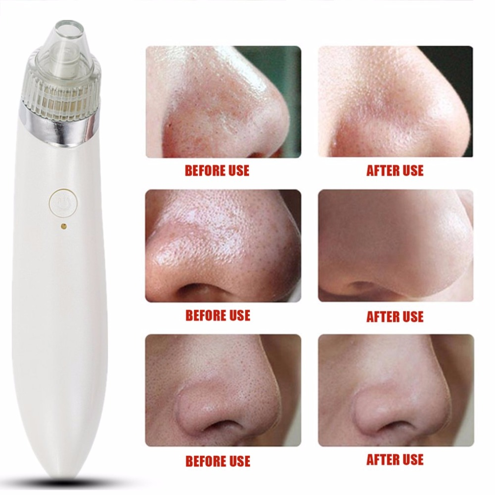 Pro Ultrasonic Vibration Electric Blackhead Vacuum Suction Remover Vacuum Face Pore Spot Cleaner Beauty Facial Skin Care Tool 10