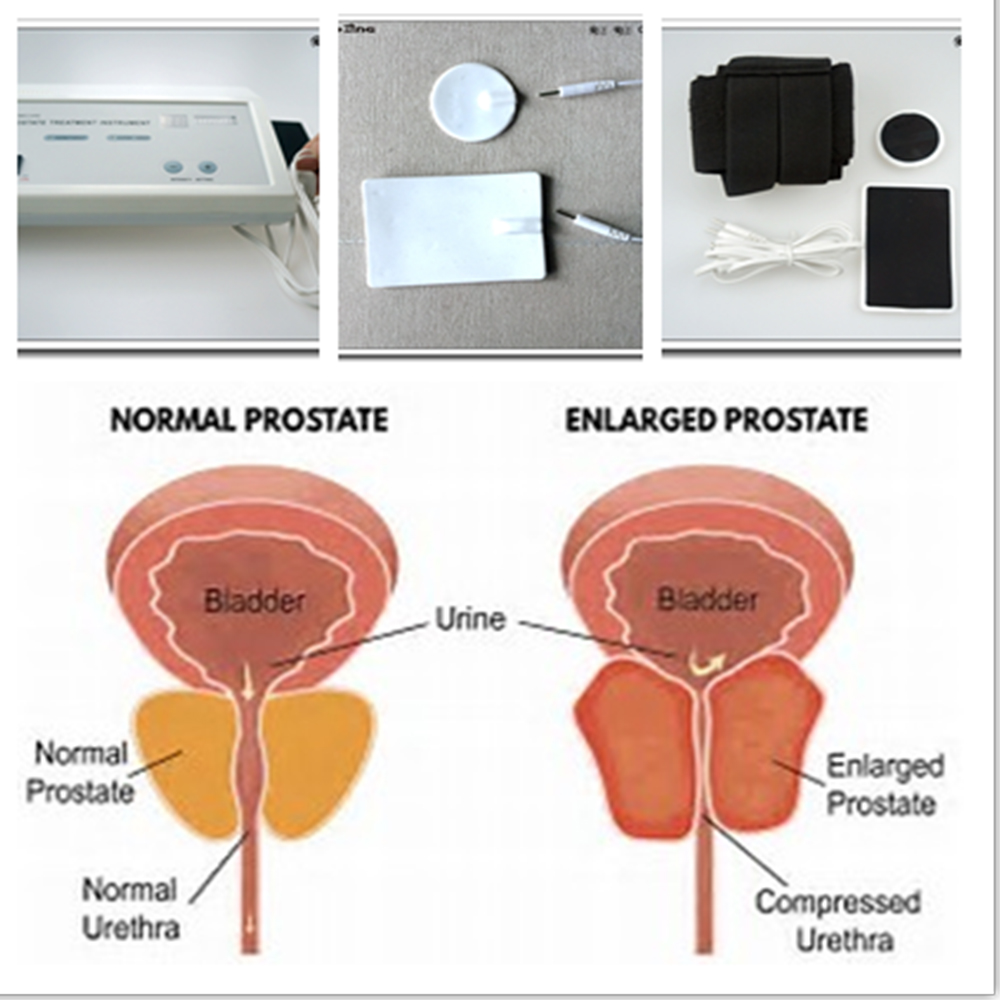 prostate machine