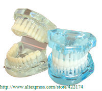 Free Shipping Natural size model (HH) dental tooth teeth dentist dentistry anatomical anatomy model odontologia<br>