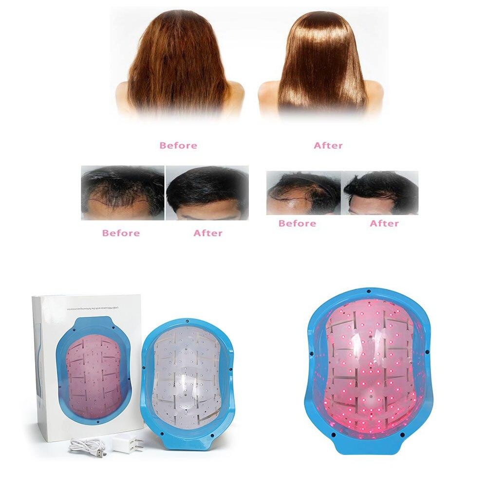 laser hair growth cap