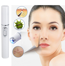 2016 New Blue Light Therapy Acne Laser Pen Treatment Device Home Beauty anti-acne Beauty Massager(China)