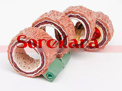 Human Anatomical Atherosclerosis Angiocarpy Thrombus Lesion Medical Model<br>