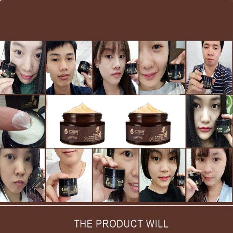 Whitening Beauty Skin Face Care Creams Acne Tre Profession Herbal Acne Cream Anti Pimple Spot Acne Scars Blackhead Removal Cream 5