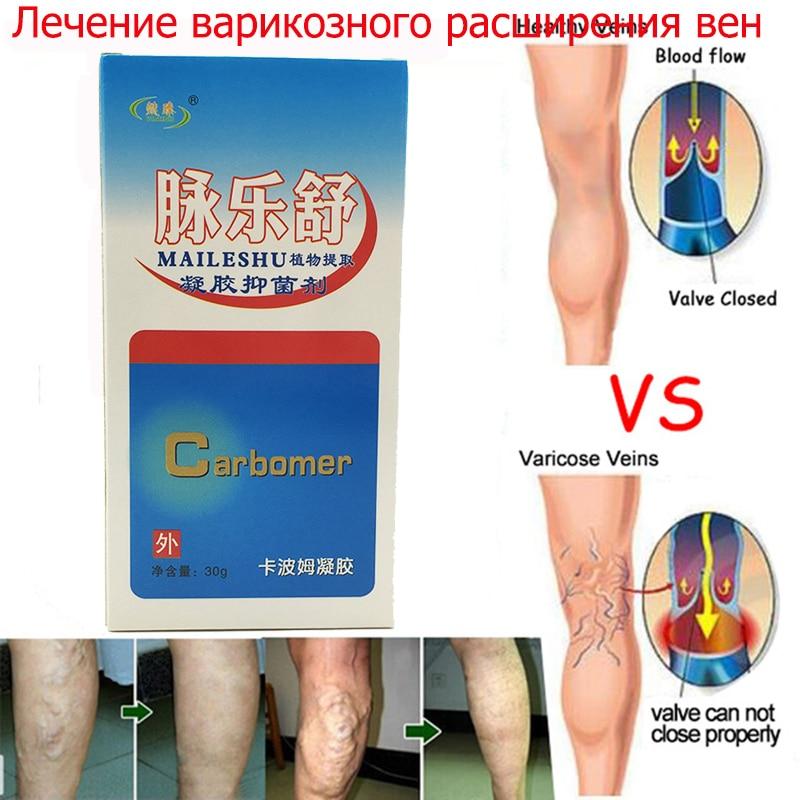 Varicose veins legs