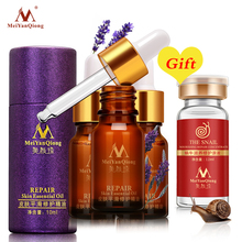 Buy 3 Get 1 Gift Skin Care Scar Repair Skin Essential Oil 10ML Natural Pure Remove Ance Burn Strentch Marks Scar Skin Care(China)
