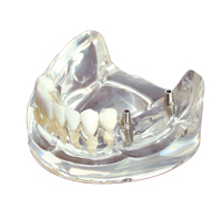 Free Shipping Implant model for teaching dental tooth teeth dentist anatomical anatomy model odontologia<br>