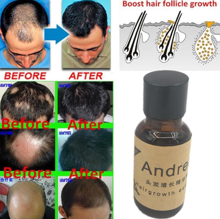Andrea Hair Growth Ginger Oil Natural Plant Essence Faster Grow Hair Tonic Toppies Shampoo No Hair Loss Hair Care Beauty Tools 3