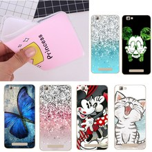 Cases For ZTE Blade A610 A510 A 610 Back Cover Sexy Girls Design Soft TPU Cover For ZTE Blade A610 A510 Cell Phone Cases(China)