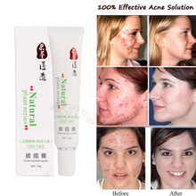 100% Effective Acne Cream Women Men Pimples Fast Heal Acne Scars Repair Red Spots Facial Smooth Care Natural Plant(China)