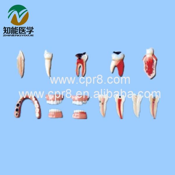 BIX - L1012  Teeth lesion series model teeth model   <br><br>Aliexpress