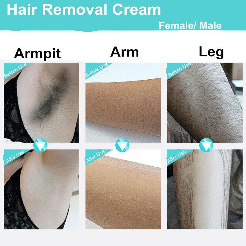 Удаление волос на всем теле навсегда в  293