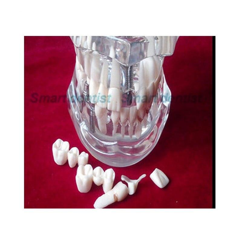 2016 Transparent Dental Implant Disease Teeth Model Restoration Bridge Tooth<br>
