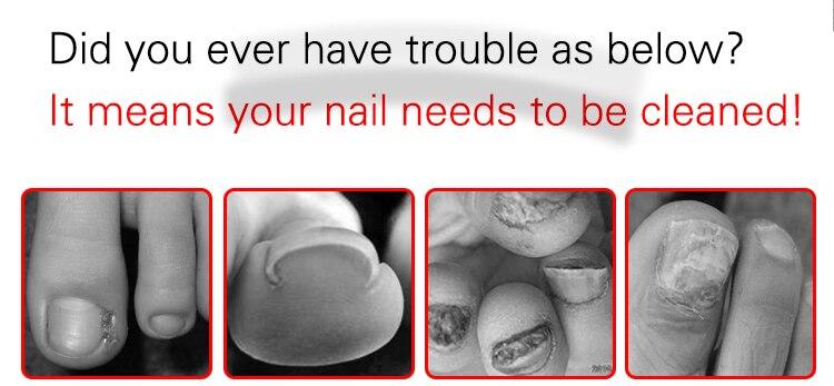 Nail-Clippers-Toe-Nail-Correction-Nippers-Cuticle-Clipper-Cutters-Podiatry-Cut-Pedicure-Manicure-Hand-Foot-Care-Tool-Paronychia-original-2019 (2)