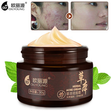 Herbal Acne Cream Anti Pimple Spot Acne Scars Blackhead Removal Cream Whitening Beauty Skin Face Care Creams Acne Treament(China)