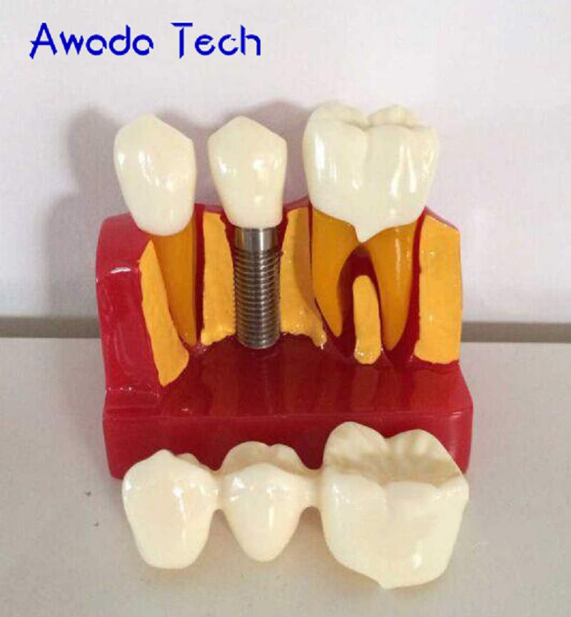 AwadaTech 4X Removable implant model Bridge tooth model Dentist for Medical Science Teaching Teeth Whitening<br>