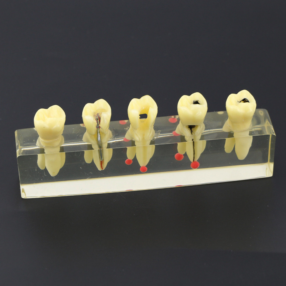 Dental Study Teach Teeth Model Endodontic Treatment Demonstration Model 4012<br>