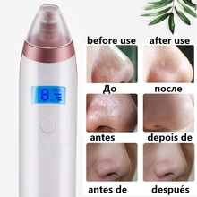 Facial Blackhead Remover Dead Skin Acne Pore Peeling Device Cleaning Skin Tool Vacuum Suck Out Blackhead Beauty Machine(China)