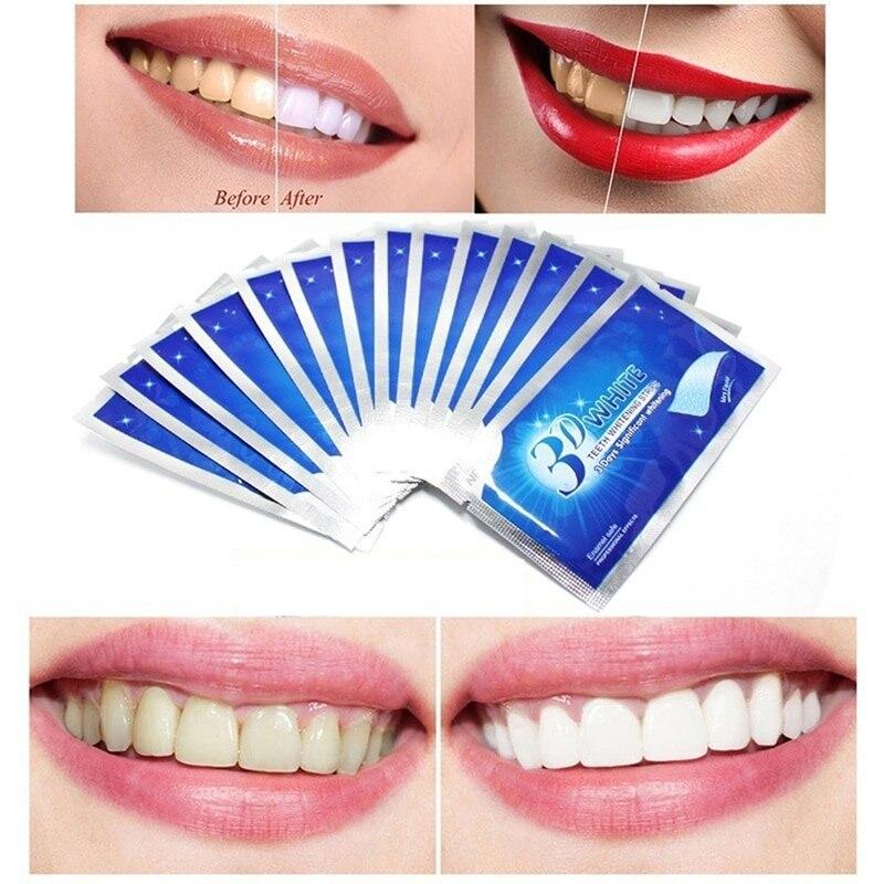 Внутриканальное отбеливание зуба - преимущества и