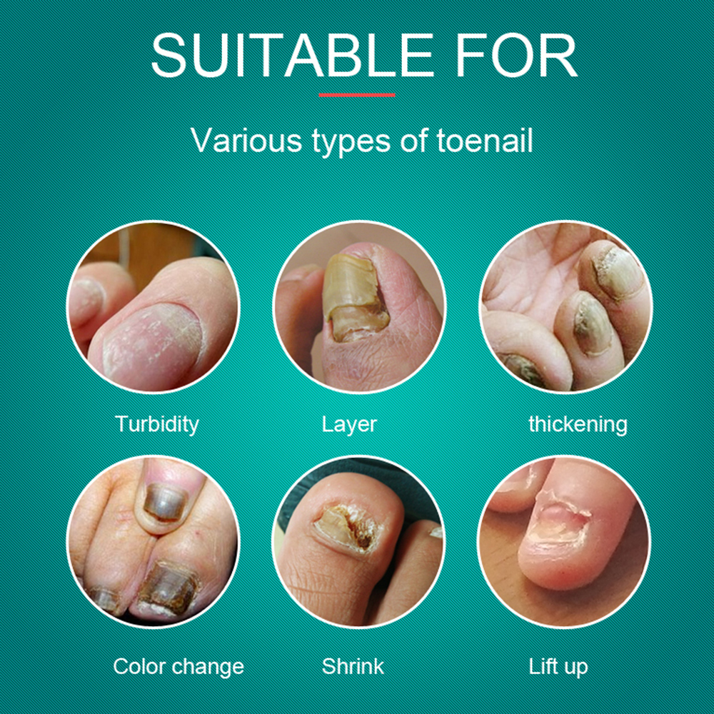 Detail Feedback Questions about TYJR Nail Repair Care Fungal Nail ...
