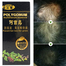 Unique Fast Hair Growth Stop Hair Loss Product dense hair regrowth treatment Women postpartum anti hair loss Chinese medicine 3(China)
