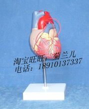 Natural large - heart bypass model, 2 - part bypass surgery adult pathologic cardiac anatomy model 23*11*11cm 0.65kg