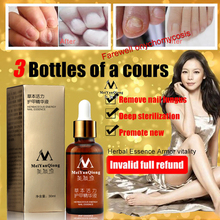 3pcs New!!! Fungal Nail Treatment Essence Nail And Foot Whitening Toe Nail Fungus Removal Feet Care Nail Gel(China)