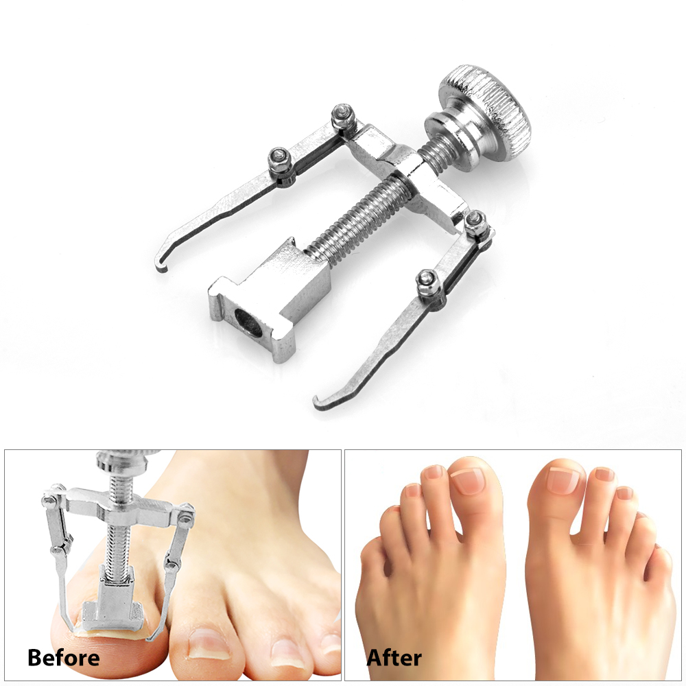 The Effect of Ingrown Toenails Correction Device