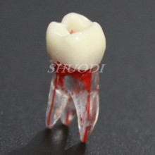 1:1 Resin Dental Endodontic Student Study Practice Operation Model with Colored Root Canal and Pulp Transparent without files(China)