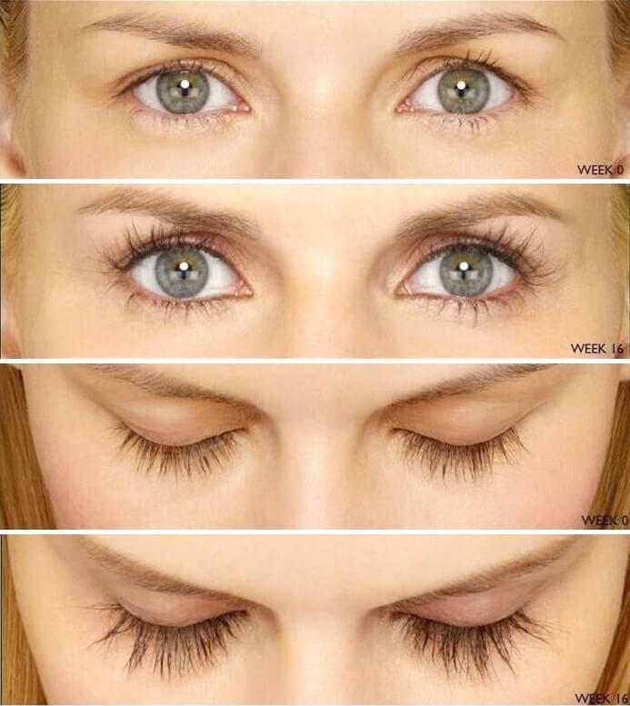 eyelash-growth-serum-results