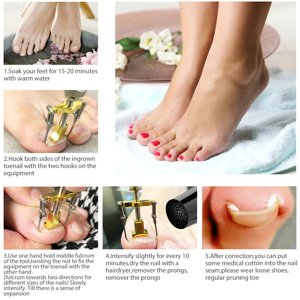 How To Use The Ingrown Toenails Correction Device
