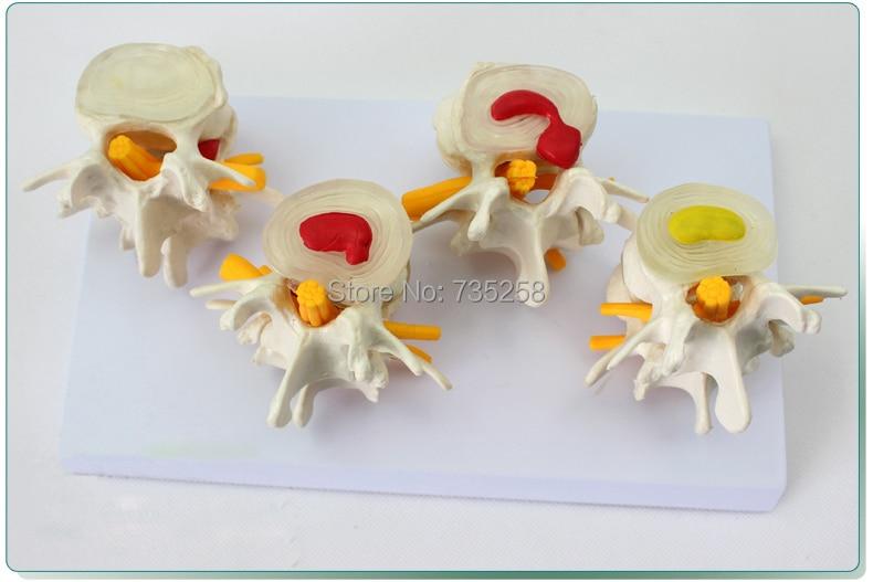 Lumbar Spine Lesions Presentation Model,Human Lumbar Disease Model<br>