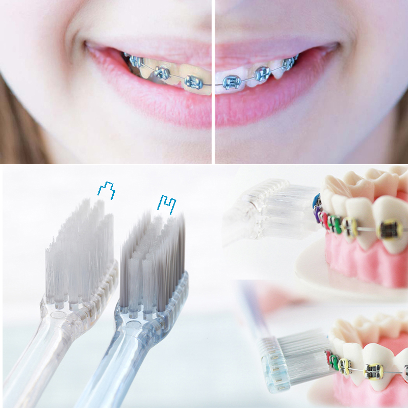 Orthodontic Toothbrush DuPont Bristles and Antibacterial Soft Bristles with Silver Ions Concave & Convex 2 Pcs/Set