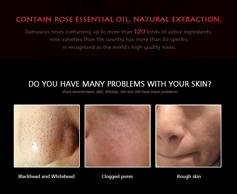 rose-blackhead-removal_03